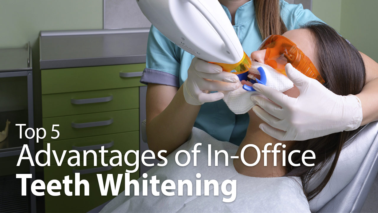 Top 5 Advantages of Teeth Whitening