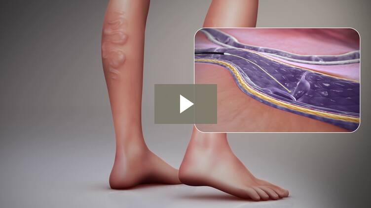 Sclerotherapy Procedure - 3D Medical Animation