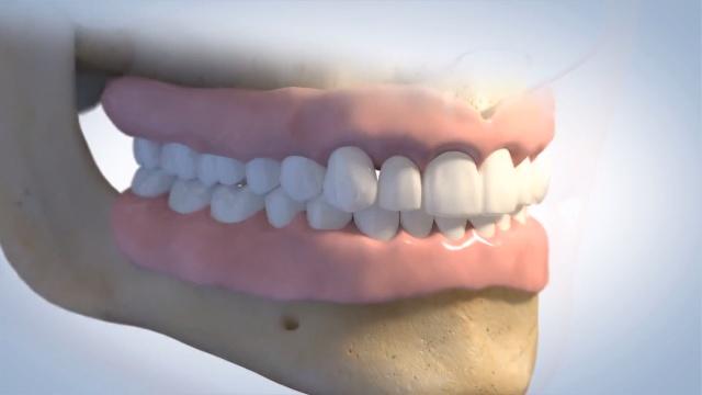dentures_24fpsNEW