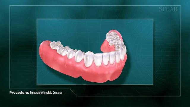 Dentures liverpool natural looking affordable from 94pm solutioingenieria Choice Image