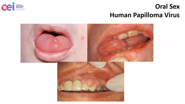 Can you get disease from oral sex