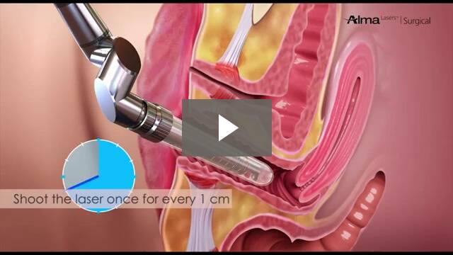 non-surgical vaginal tightening, femilift