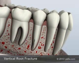 root crack tooth