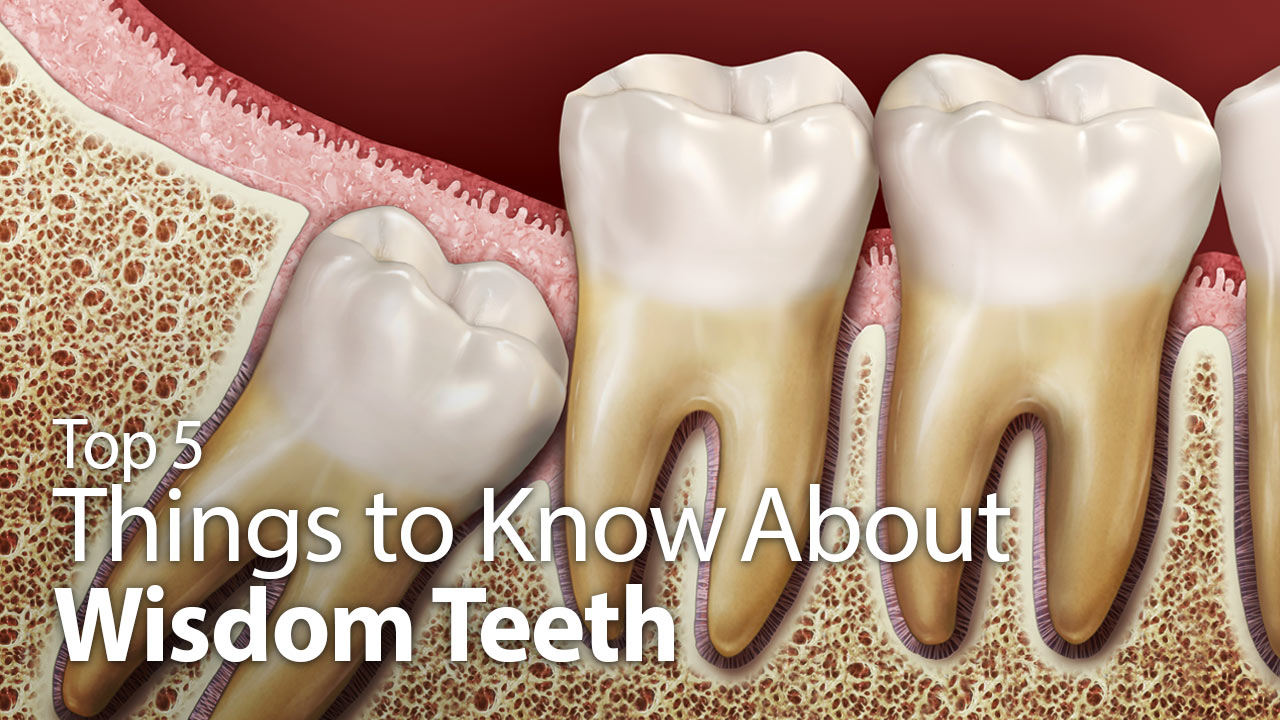 Top 5 Things to Know About Wisdom Teeth