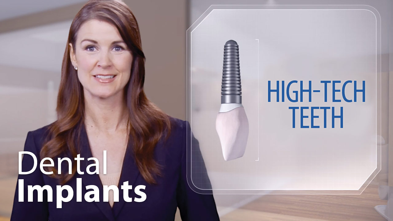 Dental Implants - High-Tech Teeth
