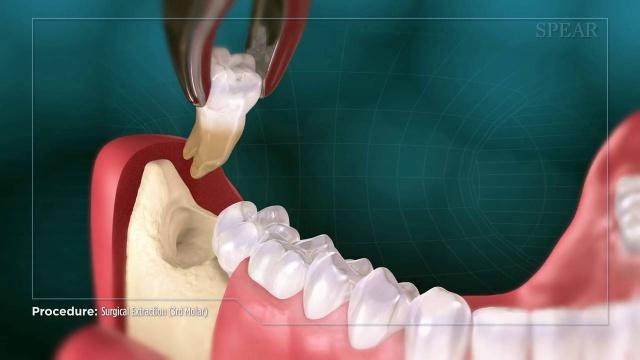Oral Surgery Videos Indianapolis In Central Indiana Periodontics