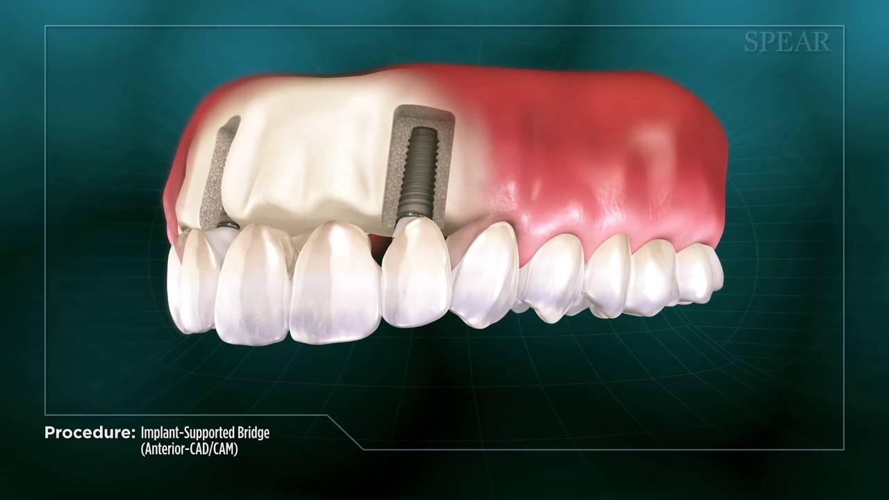 Implant Supported Bridge Anterior CAD CAM