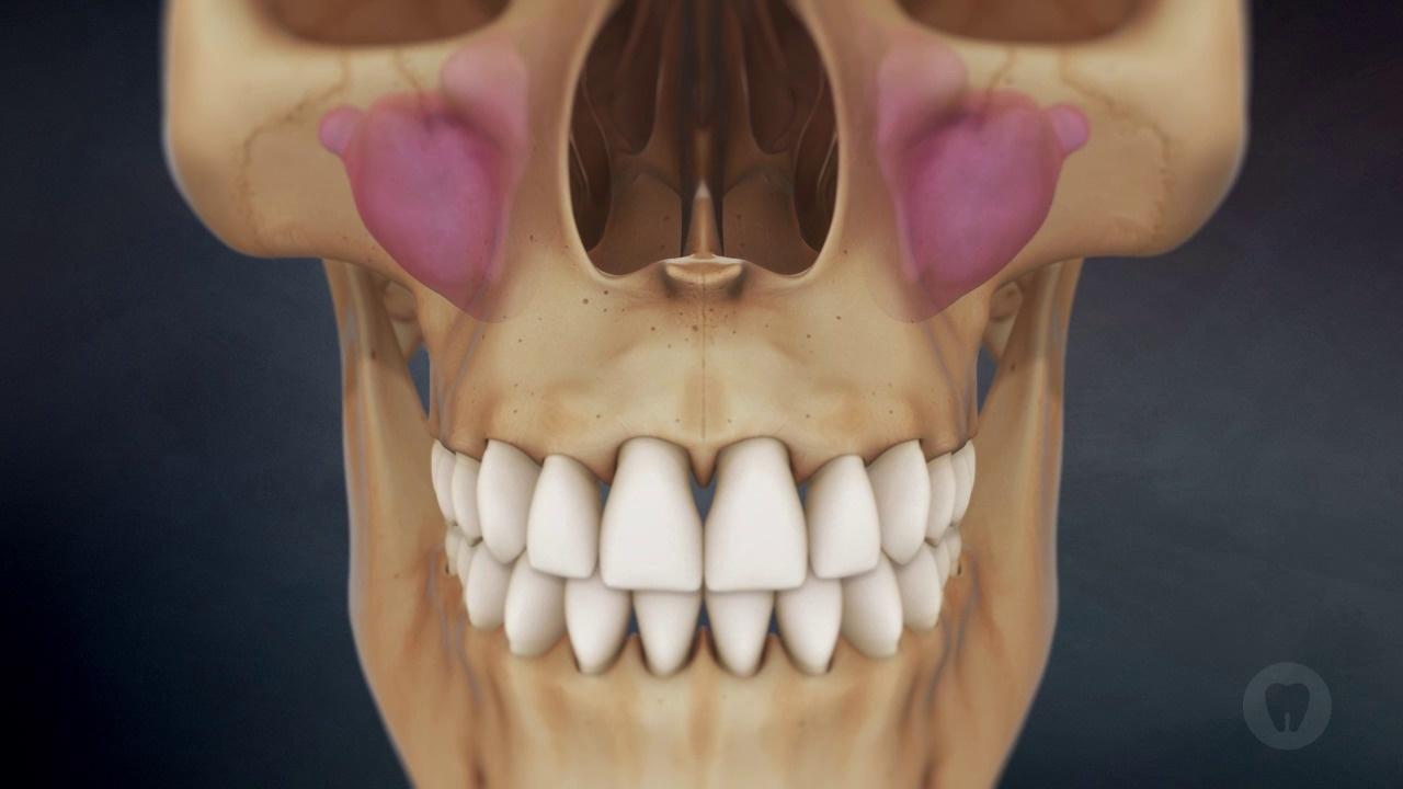 Sinuses: Pneumatization Over Time