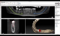Accurate diagnostics and treatment planning through combination of 2D and 3D views.