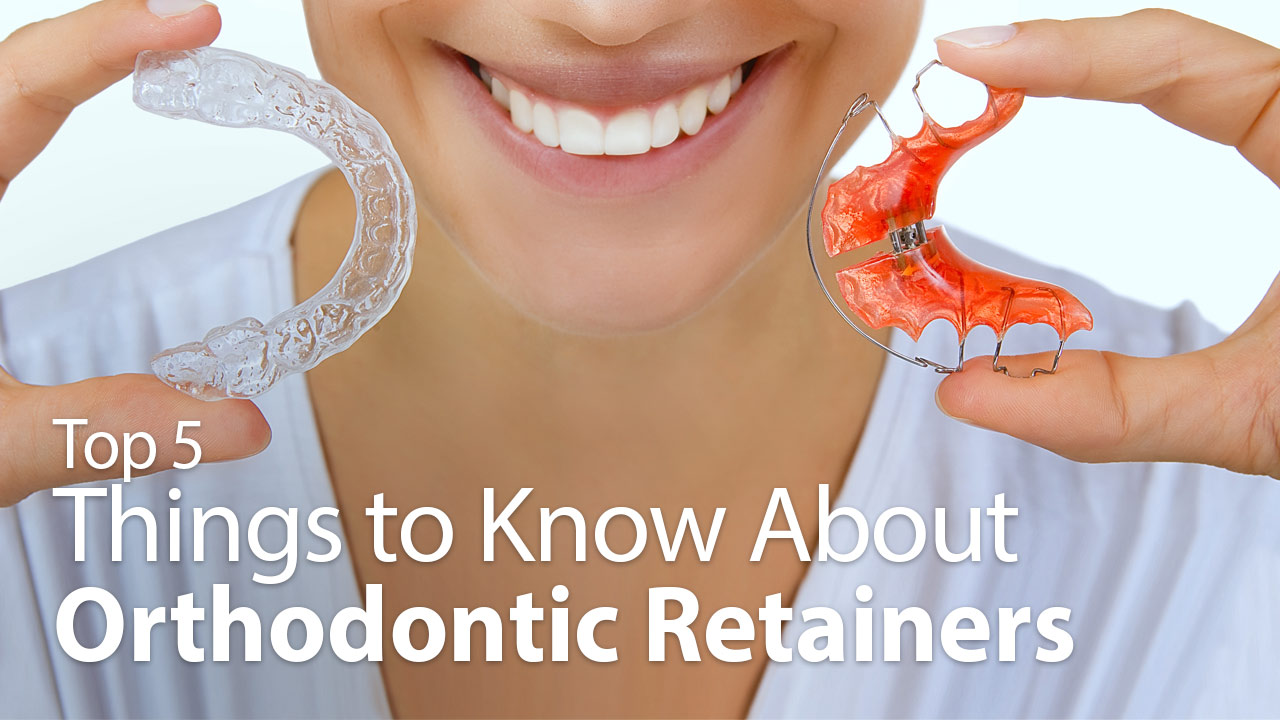 Top 5 Things To Know About Retainers