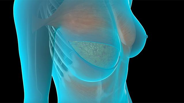 Breast reconstruction specialist