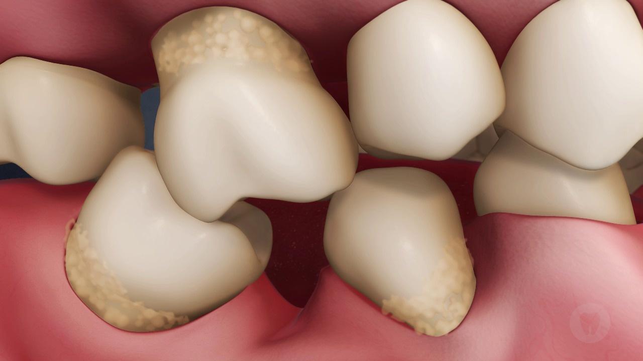 Missing Tooth Sequelae