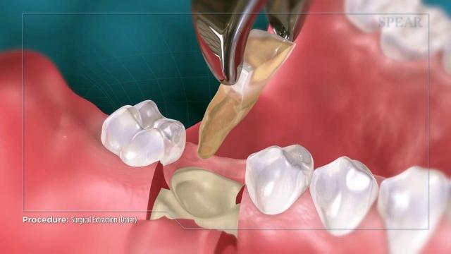 Wisdom Teeth Extraction Oral Surgery