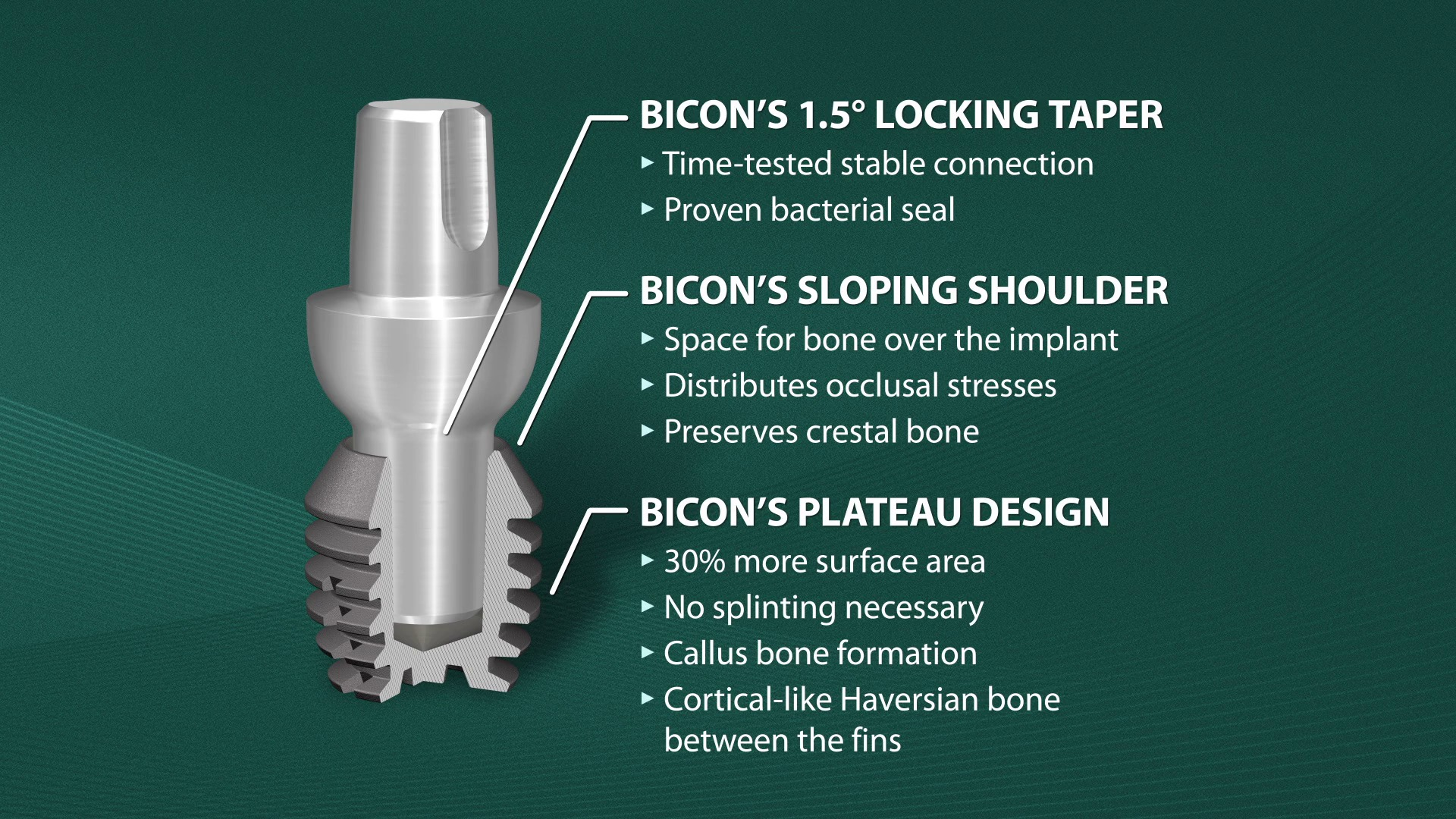 SHORT® Implants | Bicon Videos